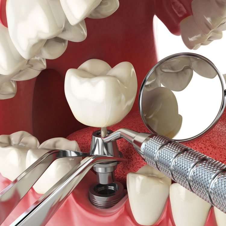 Dental Implants Bone