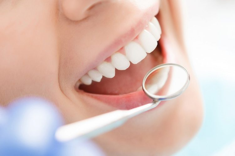 Oral Cleaning
